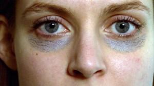 Ursachen für dunkle Augenringe